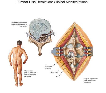 lumbar herniated disc - klejonka, Human body